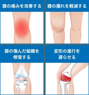 PRP-FD(PFC-FD)療法の効果