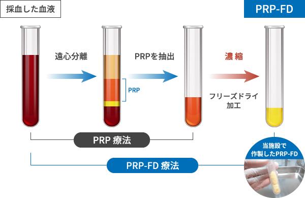 PRP-FD(PFC-FD)療法とPRP療法の違いは?