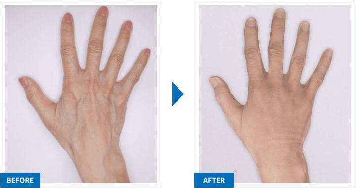 レーザー治療と、PRP皮膚再生治療・硬化療法の併用について