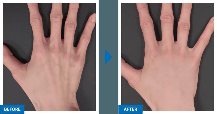 PRP皮膚再生治療