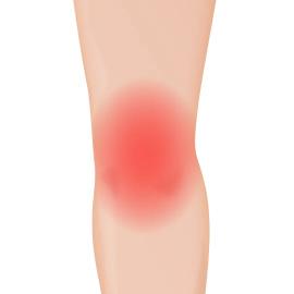 膝の痛みを改善する