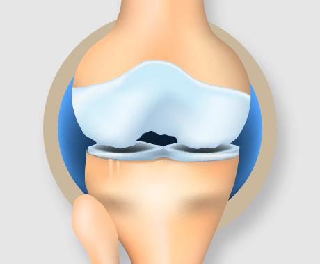 初期のひざ関節