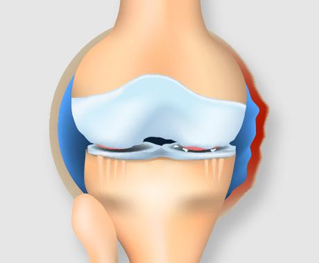 中期のひざ関節