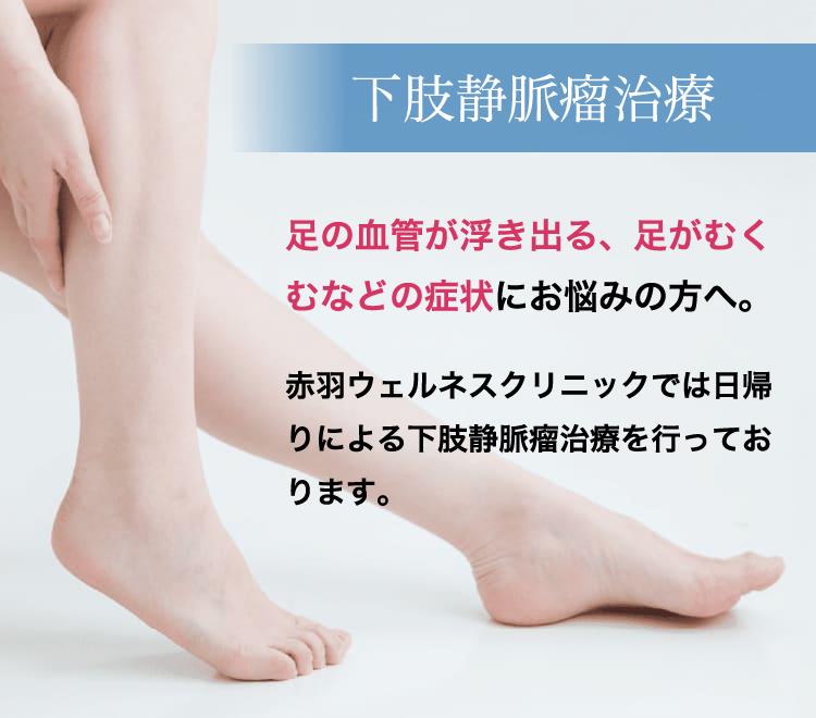 下肢静脈瘤治療