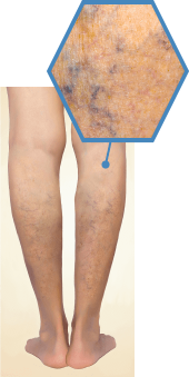 Stage 2網目状静脈瘤