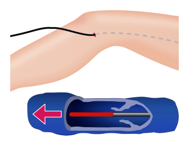 下肢静脈瘤の根本的な治療