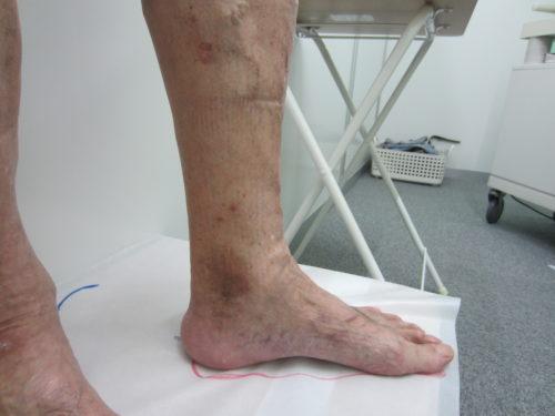 足首の浮き出た血管4