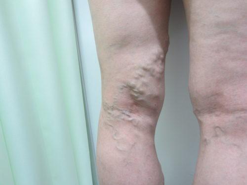 膝裏の静脈瘤写真