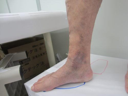 足首の浮き出た血管5