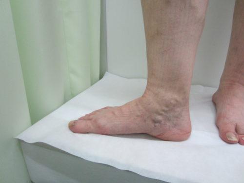 足首の浮き出た血管3