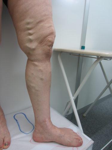 太もも内側の浮き出た血管