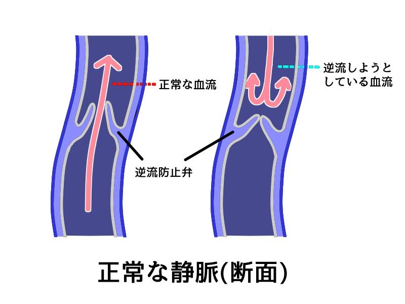 静脈の逆流防止弁