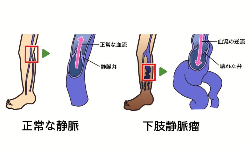 下肢静脈瘤と静脈弁の働き
