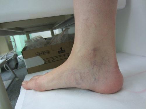 足首の浮き出た血管1