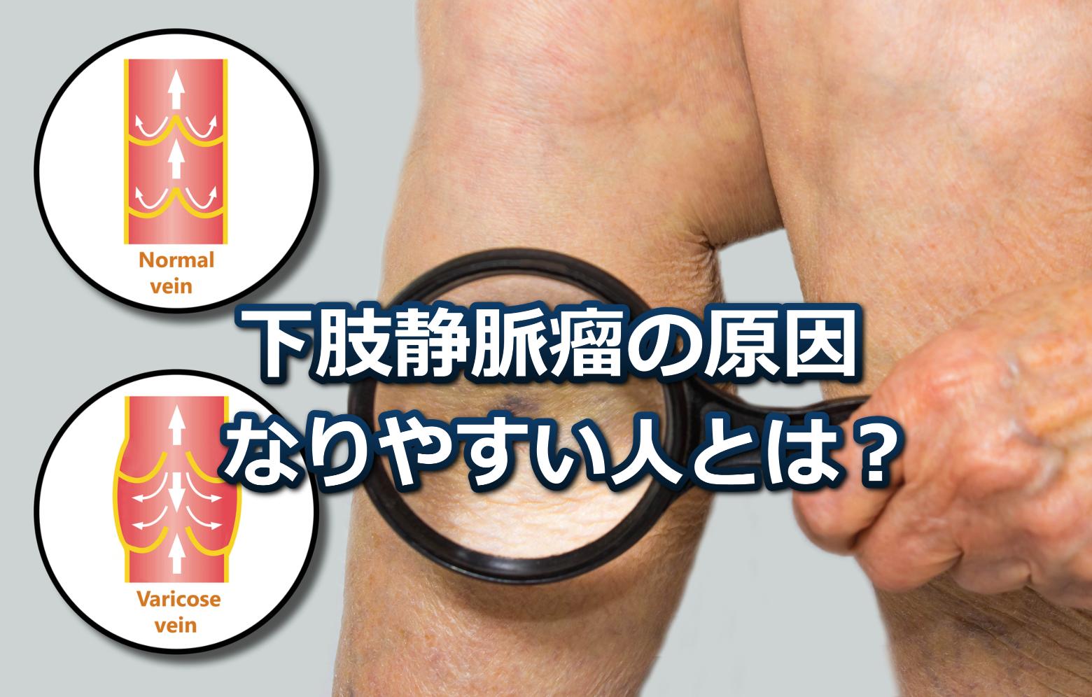 下肢静脈瘤の原因なりやすい人