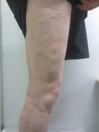 脚の外側の静脈瘤の写真画像