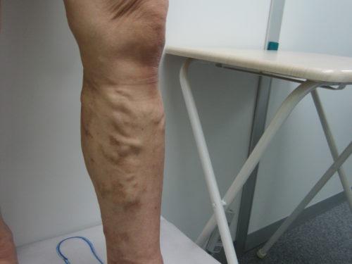 ふくらはぎの静脈瘤