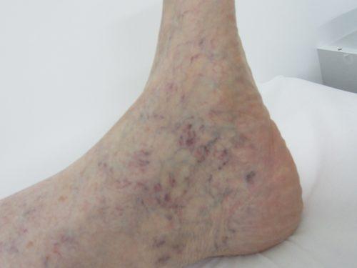 足首の浮き出た血管2