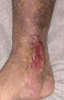 下肢静脈瘤による潰瘍