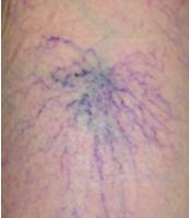 クモの巣状静脈瘤の画像