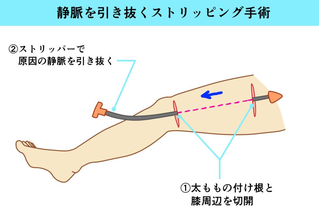 ストリッピング手術