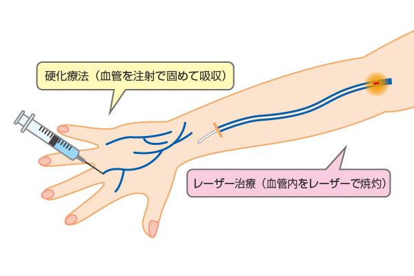 硬化療法とレーザー治療の同時施行
