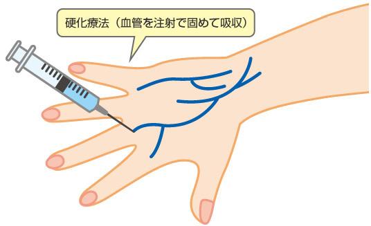 硬化療法について