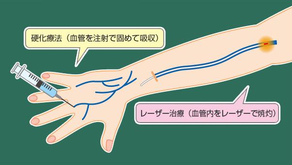 赤羽静脈瘤クリニックの治療法 硬化療法とレーザー治療の同時施行